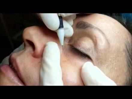 intimate area skin lightening etobicoke